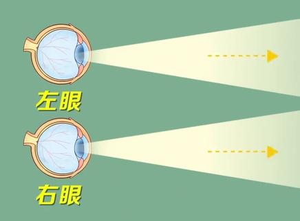两眼视力不一样会有什么影响?